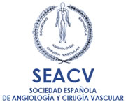 SEACV